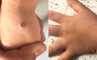 The Best Way to Get Rid of Warts on Kids